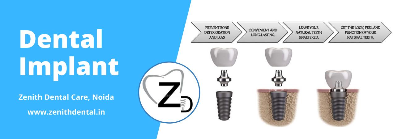 Dental Implant In Noida