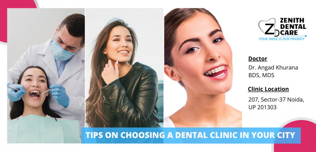 zenith dental clinic in noida