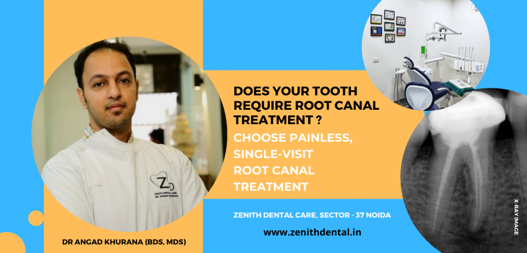 root canal treatment in Noida sec 37